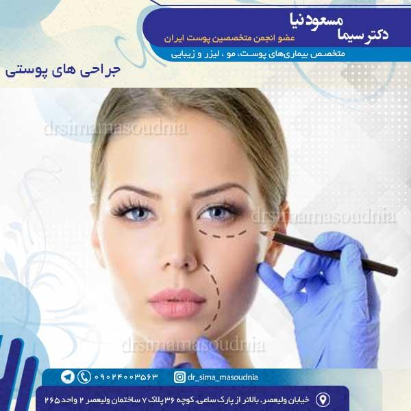 جراحی های پوستی