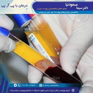 درمان با پی آر پی