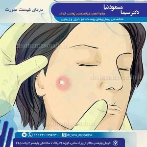 درمان کیست صورت